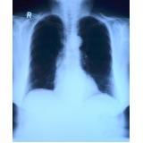 tratamento de fisioterapia para idoso com pneumonia Itatiba